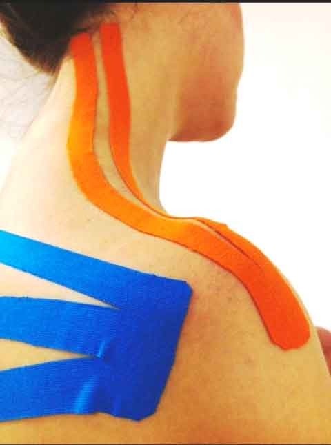TAPING NEUROMUSCOLARE 2